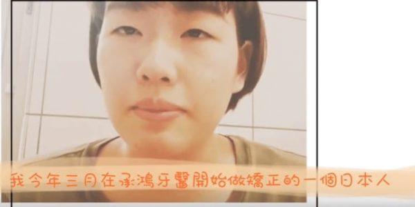 日本朋友的傳統矯正、隱適美牙齒矯正經驗 5 (2)