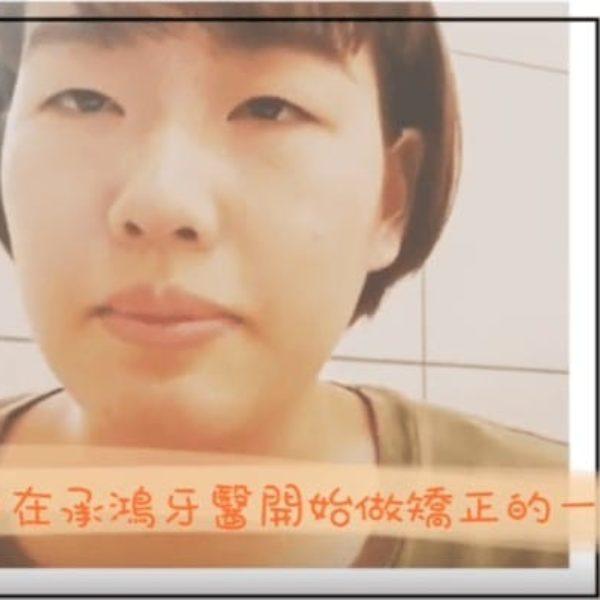 日本朋友的傳統矯正、隱適美牙齒矯正經驗