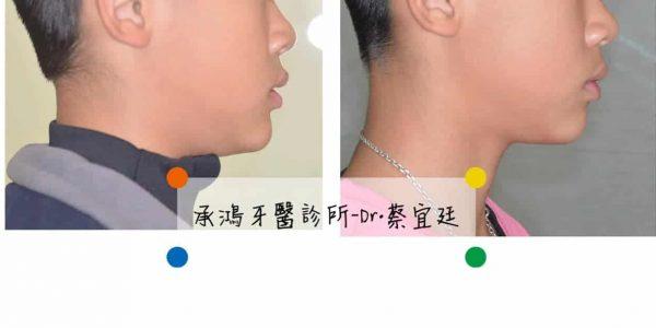 牙齒矯正案例 5 (1)