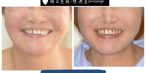 隱適美 – 缺牙、深咬矯正 5 (1)