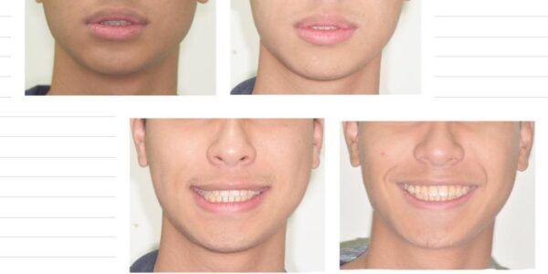 不拔牙矯正、下排中線改正 5 (1)