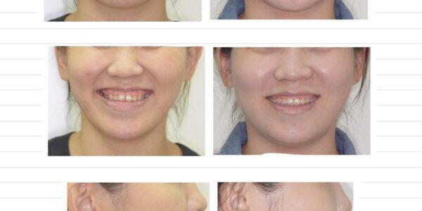 不拔牙矯正、牙縫過大、開咬 5 (1)