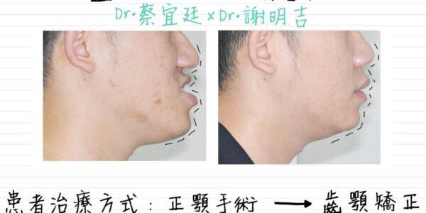 正顎手術 x 隱適美 Invisalign 5 (1)
