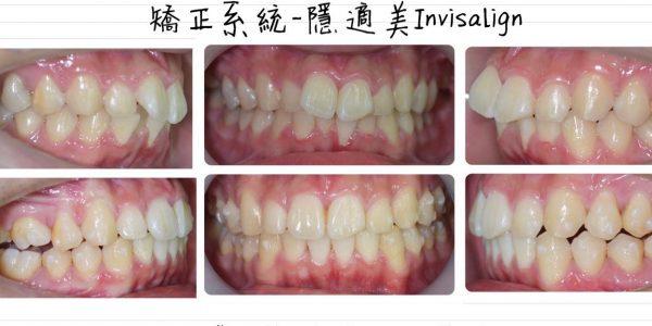 不對稱拔牙、蝴蝶牙 5 (1)