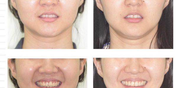 不拔牙矯正 5 (1)