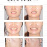 拔牙矯正之不對稱拔牙