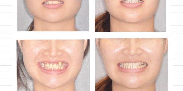 拔牙矯正之不對稱拔牙 5 (1)