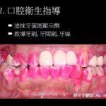 口腔衛生-牙菌斑顯示劑