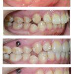 牙齒矯正神助攻-骨釘