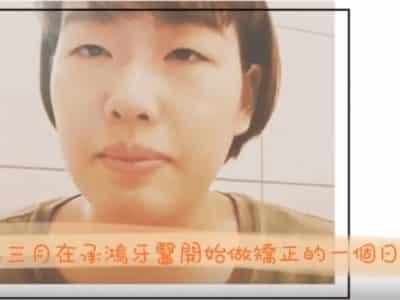 台中隱適美 日本朋友的傳統矯正、隱適美矯正經驗 | 隱形矯正專家